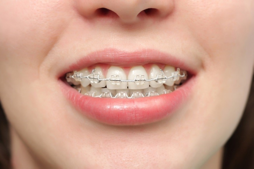 دکتر فروغ خلیلی نژاد متخصص اورتودنسی دندان - تهران سعادت آباد