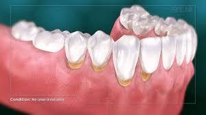 متخصص ارتودنسی سعادت آباد تهران دکتر فروغ خلیلی نژاد دندان دندانپزشک حاملگی بارداری
