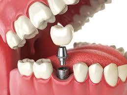ایمپلنت، اوردنت، مطب تخصصی دندانپزشکی، سعادت آباد، دندان، دندانپزشکی تخصصی، دکتر فروغ خلیلی نژاد