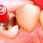 روکش دندان ، روکش برای عصب کشی دندان ، اندو ، دندانپزشکی غرب تهران ، سعادت اباد ، کیلینیک دندان پزشکی اوردنت