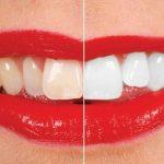 بیلیچینگ دندان سعادت آباد ، سفید کردن دندان سعادت ،سفید کردن دندان،دندانپزشکی سعادت آباد ، کلینیک اوردنت ،